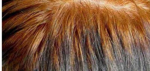 أضرار سحب لون الشعر