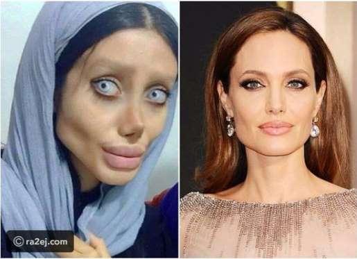 بالصور إيرانية أجرت 50 عملية تجميل لتصبح مثل أنجلينا جولي ولكن!